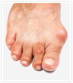 gout on the foot
